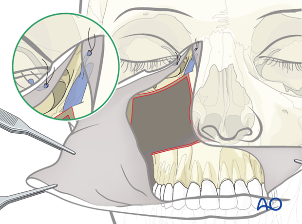 cas midface reconstruction