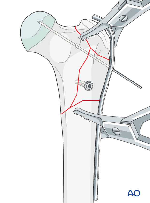 plate fixation with lag screws and pins