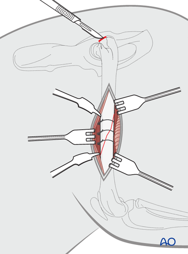 intramedullary pin fixation with cerclage wires