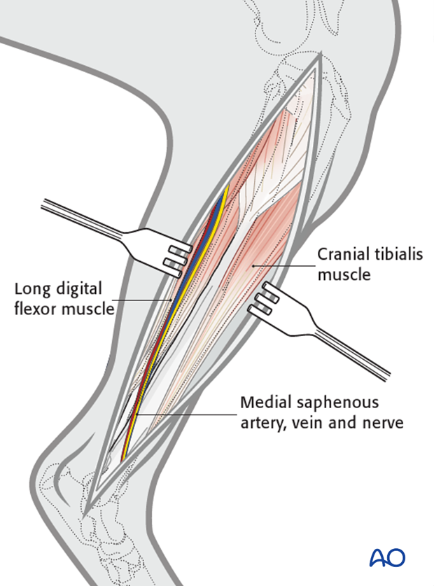 open craniomedial approach and obdnt to the tibial shaft