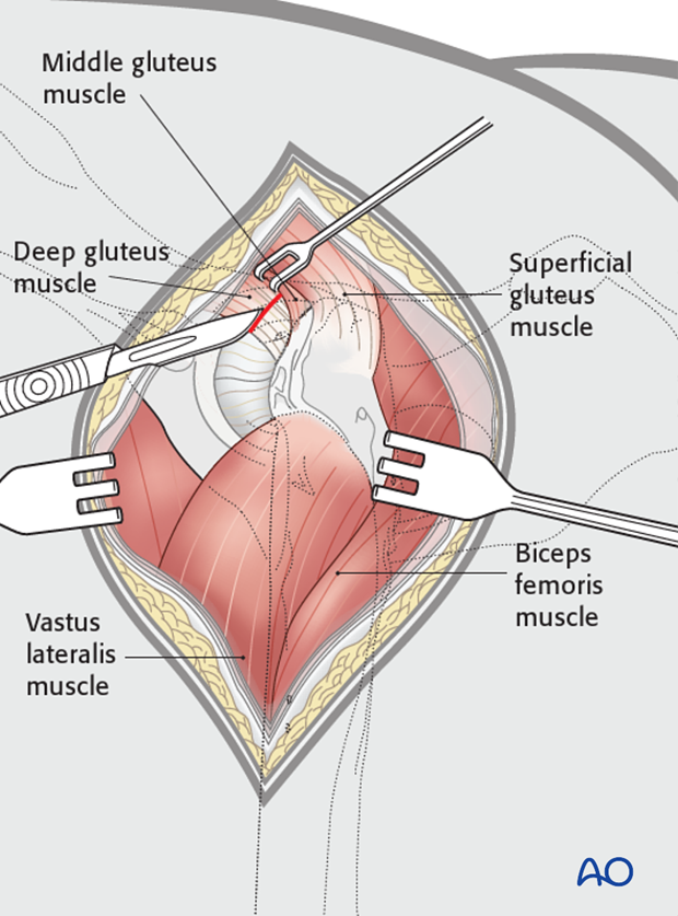 craniolateral approach combined with a dorsal approach