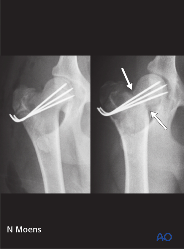 prognosis and complications with proximal femoral fractures
