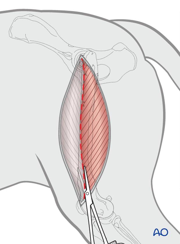 open approach to the femoral shaft