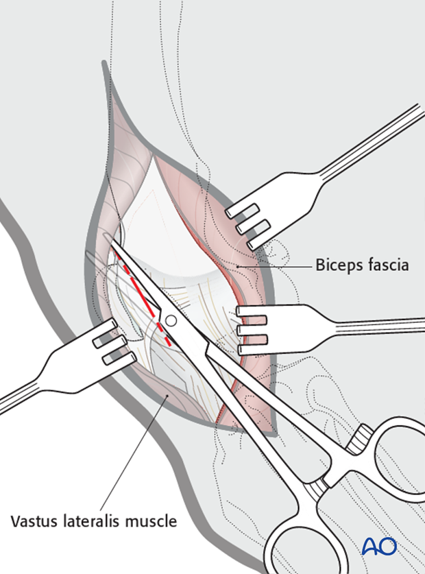 Joint capsule opening for lateral parapatellar approach to dog distal femur