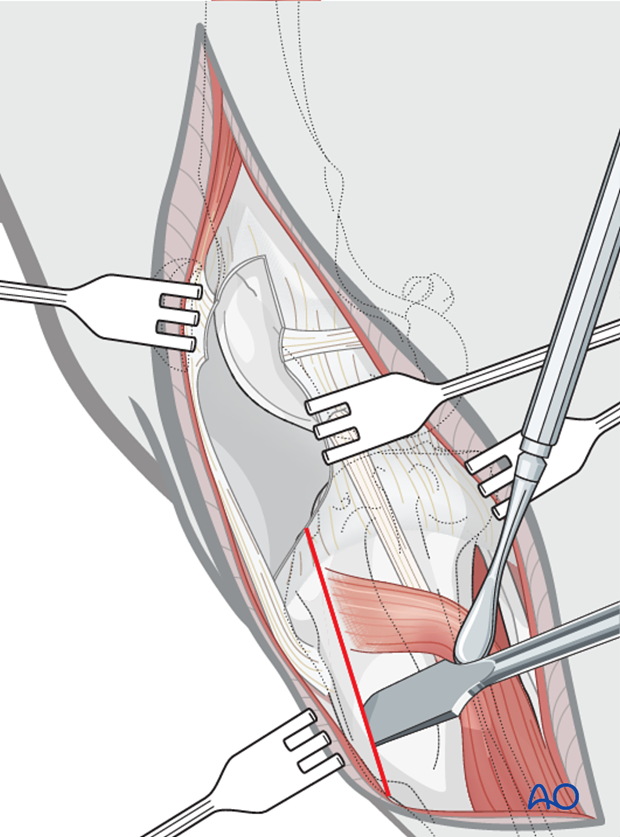 An osteotomy of the tibial crest is performed with an osteotome and mallet, while a periosteal elevator is used to retract the cranial tibial muscle