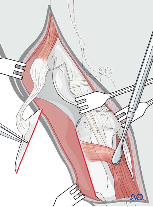 The dog tibial crest is reflected proximally for exposure of the intraarticular structures