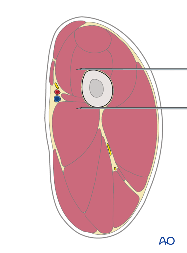 Pin placement for external fixators pin placement to treat dog femoral fractures
