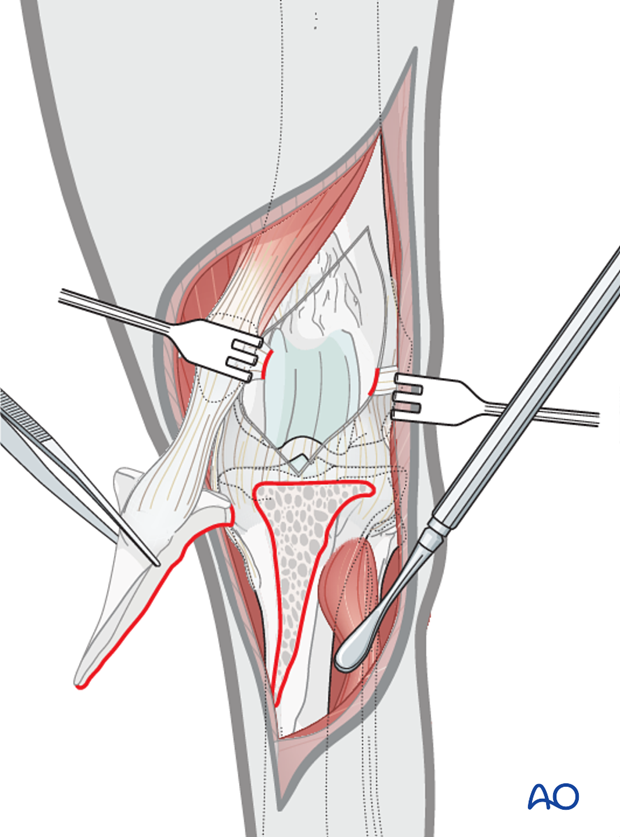 The tibial tuberosity osteotomy provides adequate visualization of the articular surface of the femoral condyle of the dog distal femur