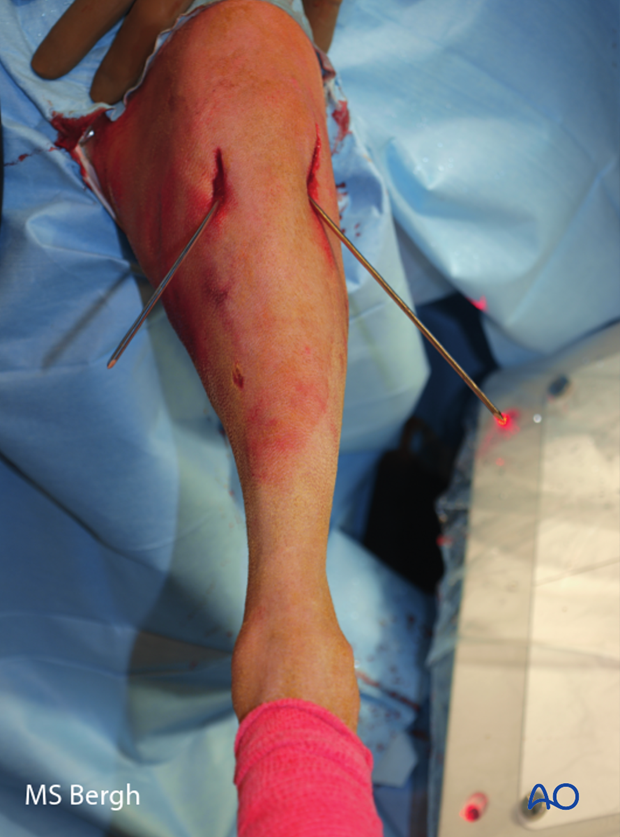 Percutaneous approach pin placement in dog distal femur