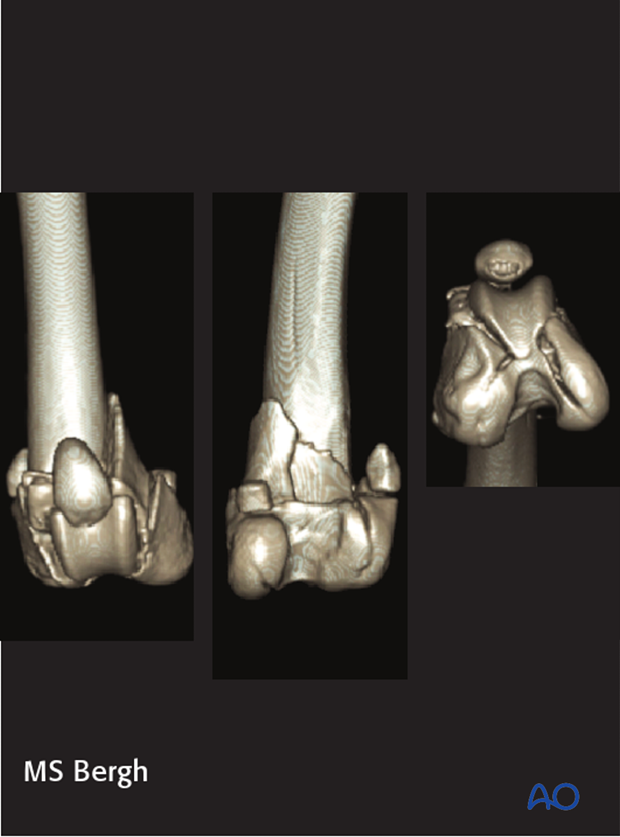 CT scan of a dog with a 33-C3 fracture of the distal femur
