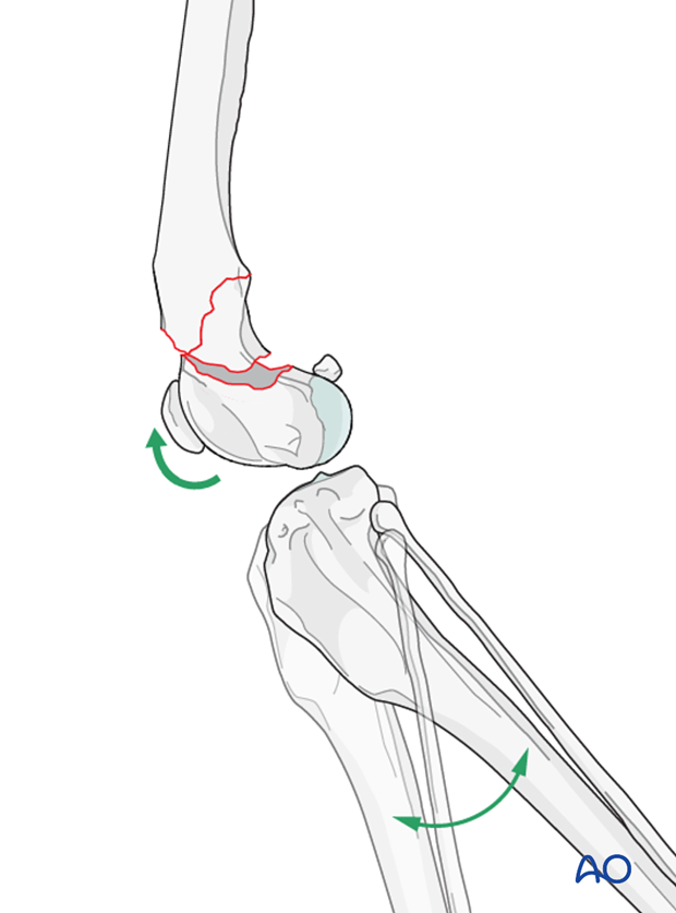 Achieving partial reduction of the fracture and gently extending the stifle joint may aid reduction