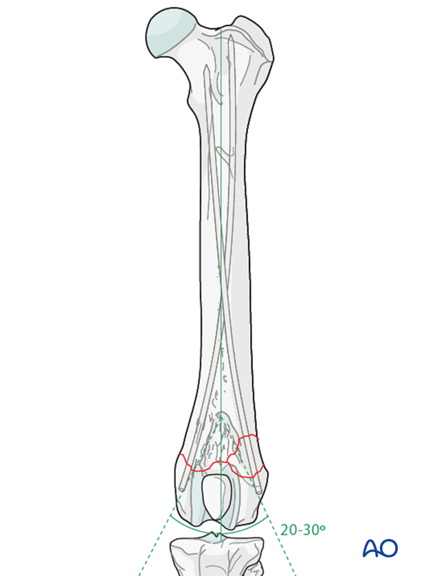 Distal femoral fracture in a dog repaired with Rush pinning technique