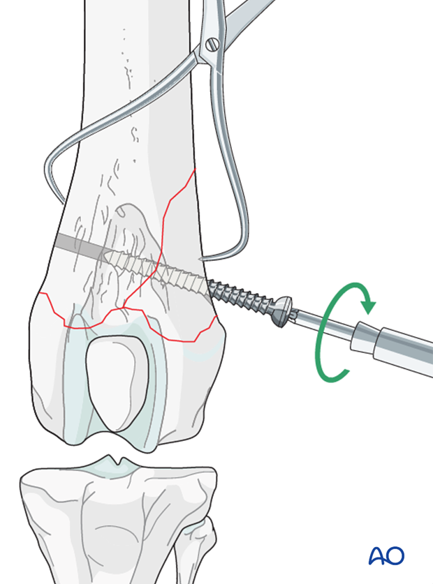 A screw is inserted in lag fashion, perpendicular to the fracture line