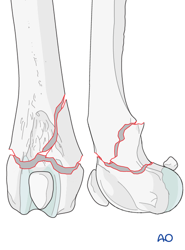 Type A2 fracture in a dog distal femur