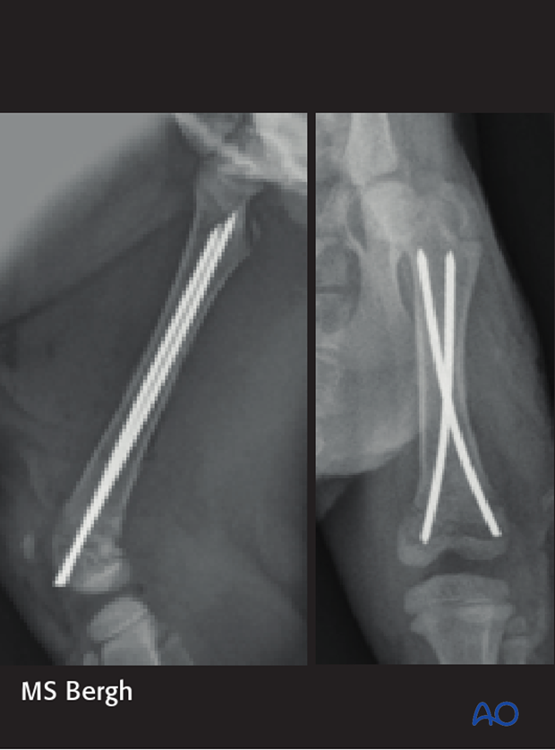 Postoperative radiograph of a dog with a distal femoral fracture repaired using Rush pinning technique