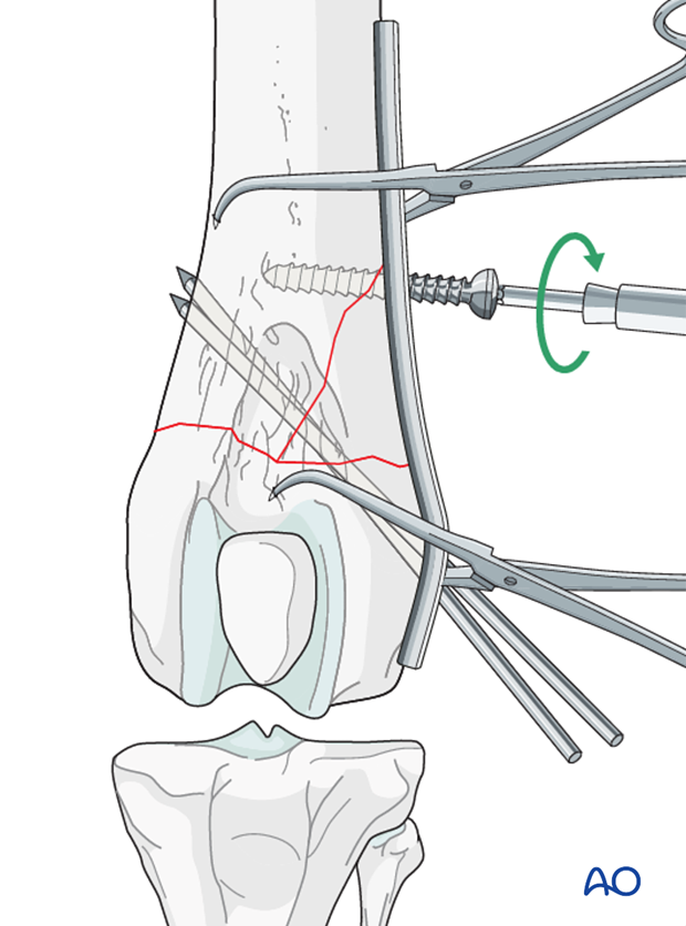 A screw is inserted in the proximal fragment in lag fashion