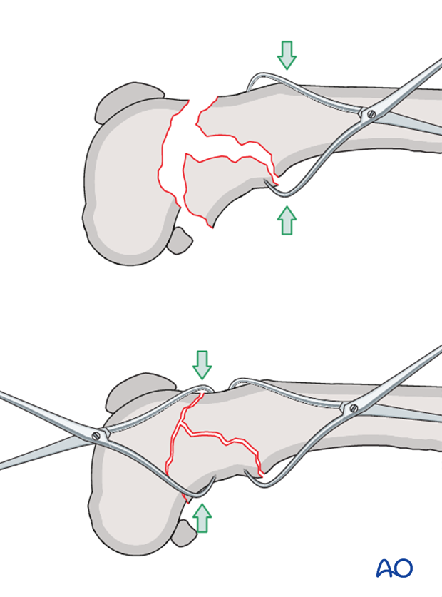 The fracture of a dog distal femur is reduced with pointed reduction forceps