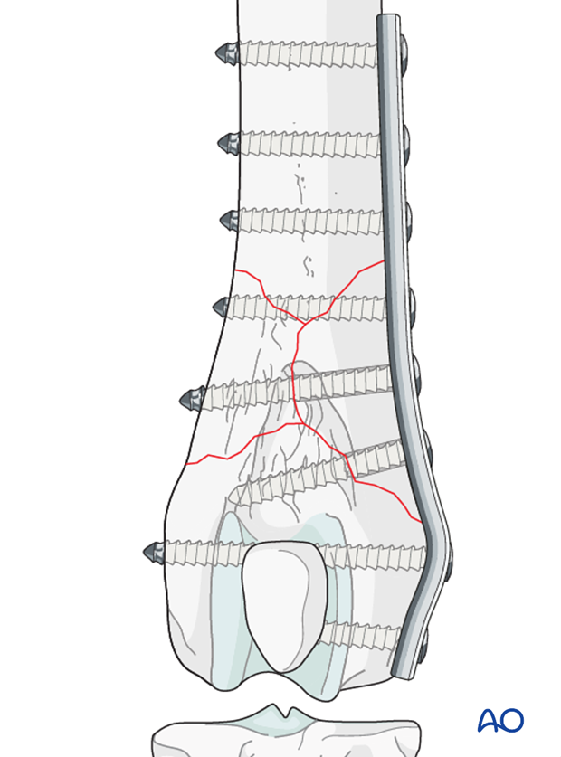 Distal femoral fracture in a dog repaired with a neutralization plate and lag screw