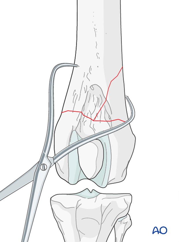 Preliminary stabilization can be achieved with reduction forceps