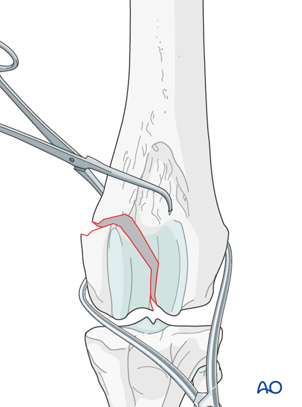 The fracture is reduced, and preliminary stabilization achieved with pointed reduction forceps