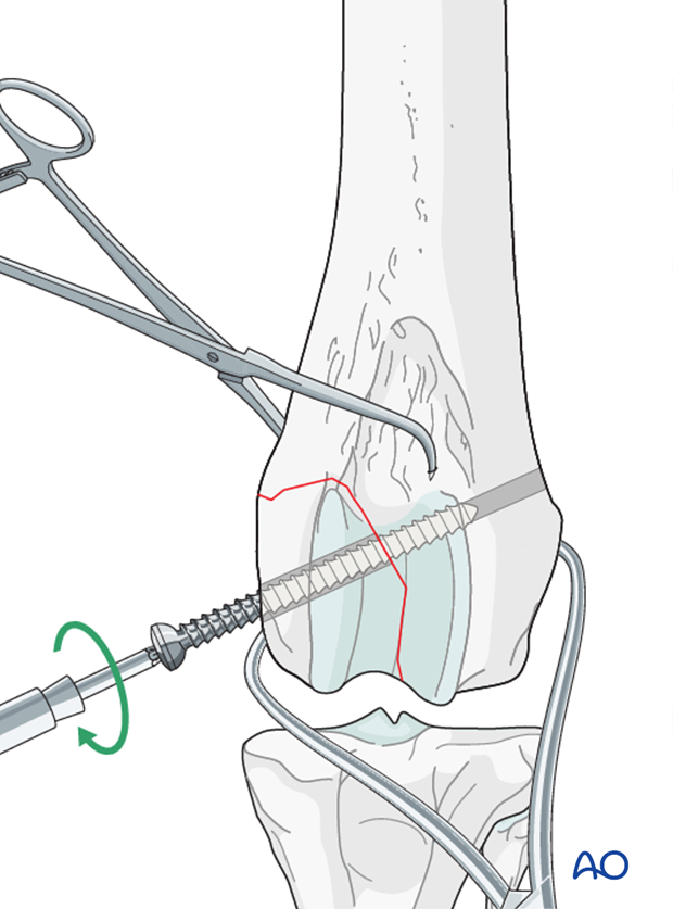 The lag screw is inserted perpendicular to the fracture plane