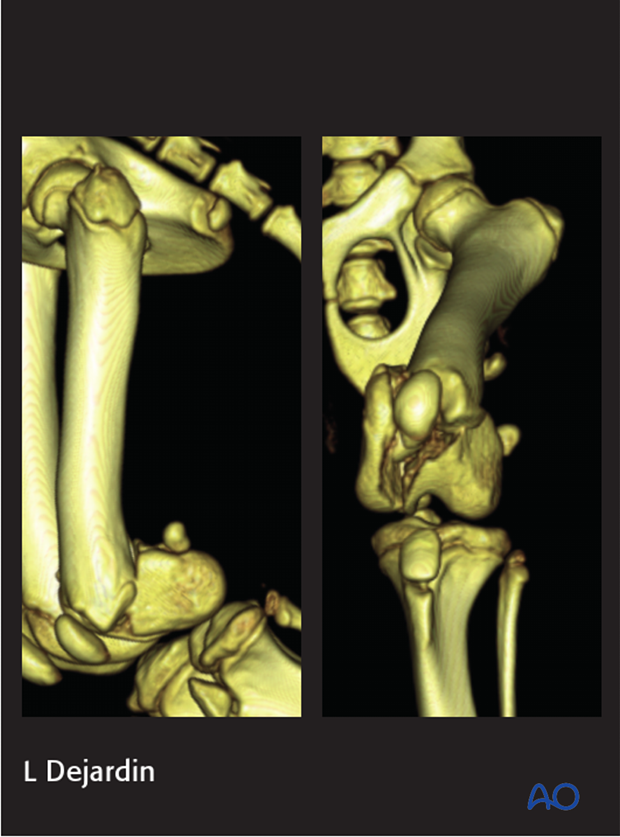 Preoperative CT of a 4-month-old mixed breed dog with a 33-C1 fracture