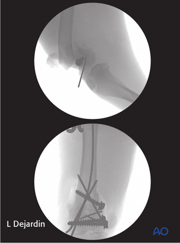Perioperative fluoroscopies of a 4-month-old mixed breed dog with a 33-C1 fracture