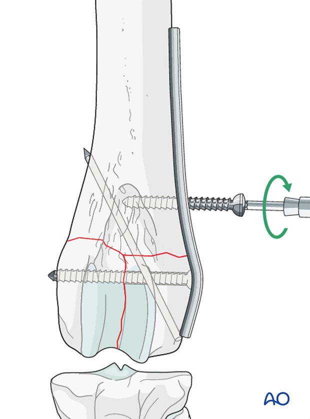 A screw is inserted in the proximal fragment in the neutral position
