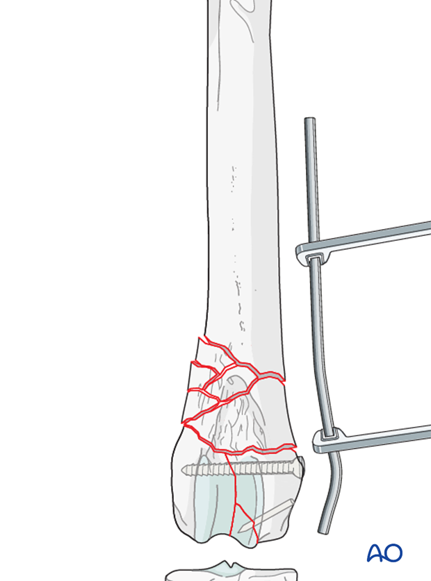 The plate is contoured to the lateral aspect of the distal femur
