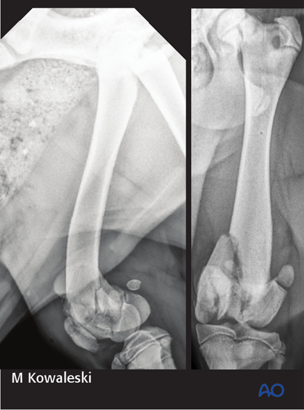 Radiograph of a 5-month-old Labrador retriever with a 33-C3 fracture, a transverse fracture of the patella, and 31-B2 fracture.