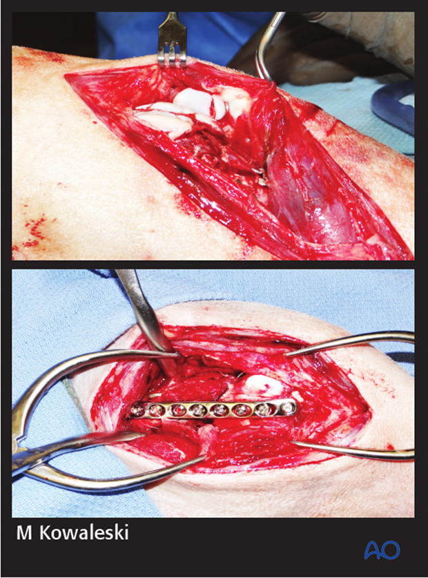 Intraoperative photographs demonstrating reduction and stabilization of the patellar fracture and distal femoral fracture through a medial parapatellar approach.