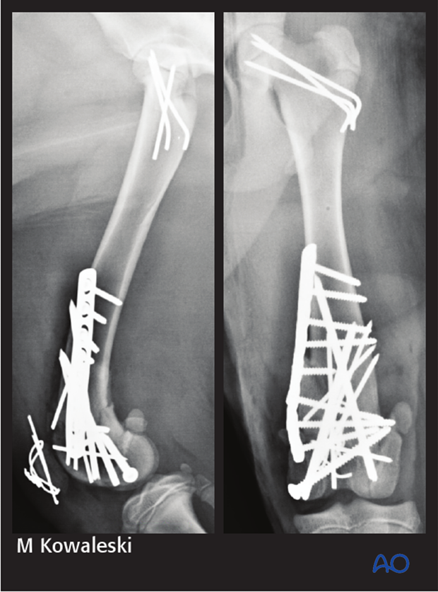 Immediate postoperative radiograph of a dog with a 33-C3 fracture repaired using cross pins, screws and a bridging plate.