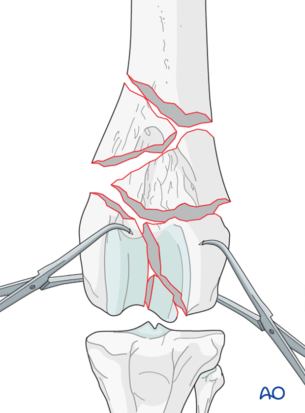 The articular fracture of the condyles is reduced with pointed reduction forceps