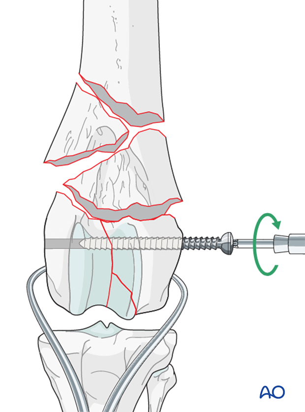 Stabilization is achieved with inserting a screw in lag fashion across the condyles perpendicular to the fracture plane