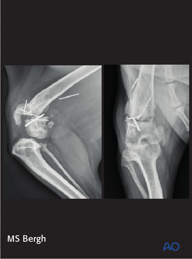 complications in distal femoral fractures