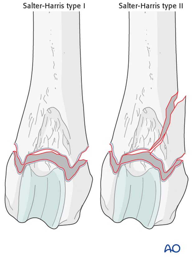 physeal fractures