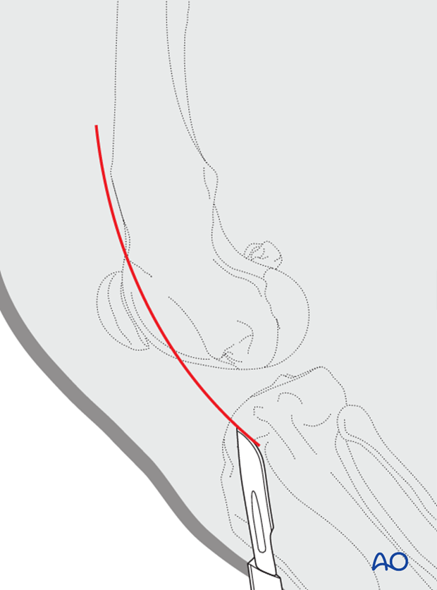 Lateral parapatellar approach