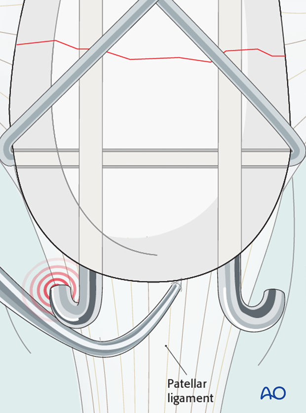 Risk of interference of the K-wires