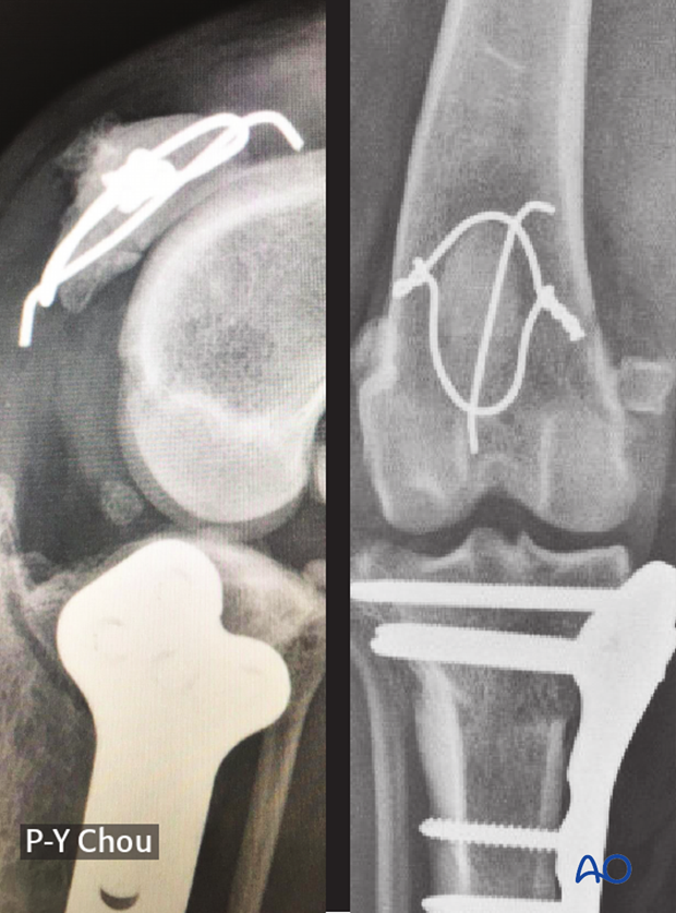 16 weeks follow-up after patellar fracture repair in a dog