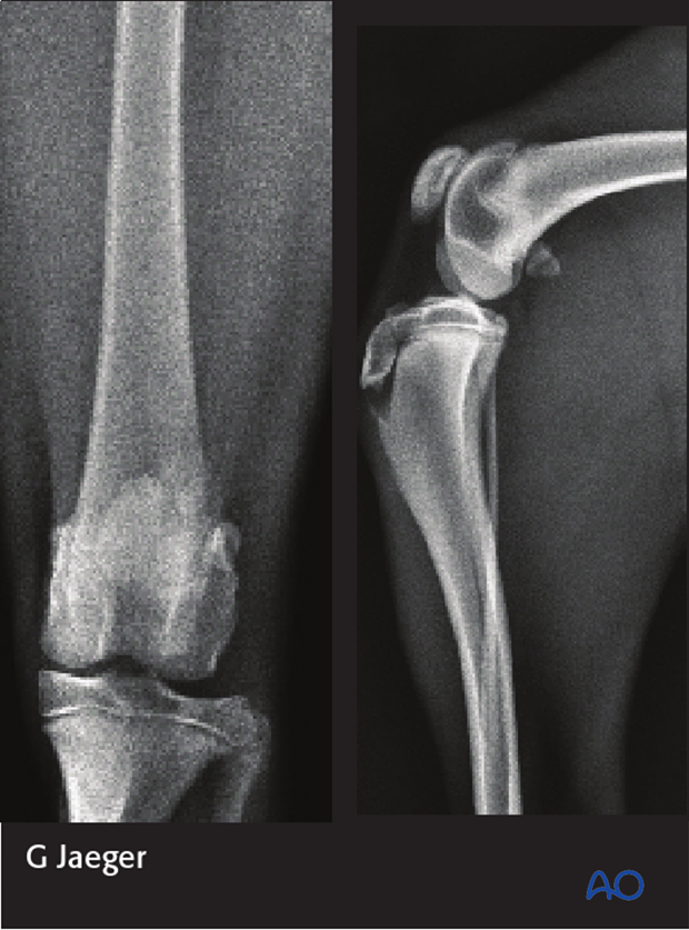 Radiographs of the stifle joint