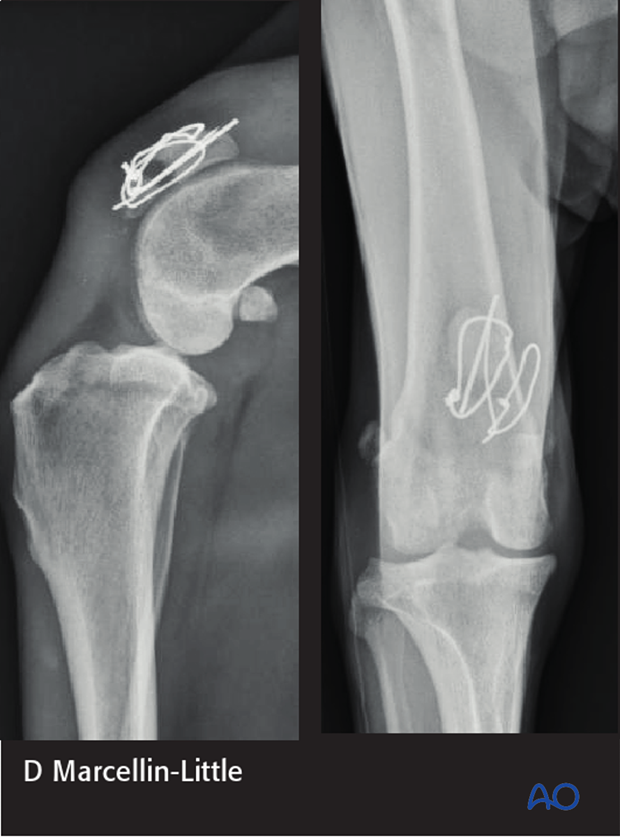 2-month postop radiographs show partial failure and nonunion