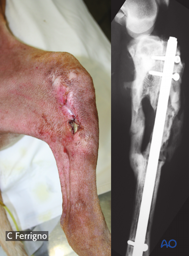 complications with tibial shaft fractures