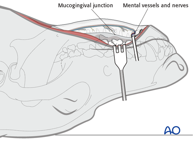 Ventral approach to mandibular body mucogingival junction protection|alt