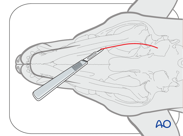 Ventral approach to caudal mandible skin incision alt