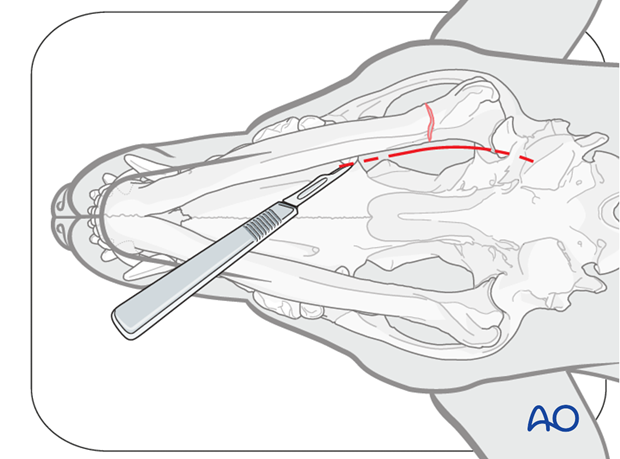 Ventral approach to caudal mandible alt