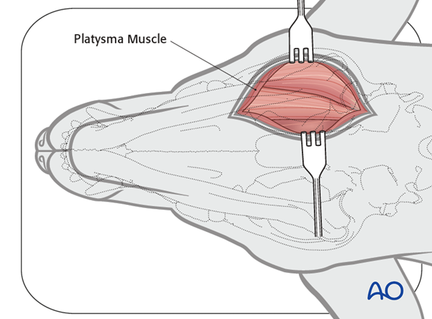 Ventral approach to caudal mandible anatomical exposure platysma muscle alt