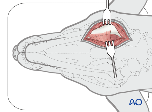 Ventral approach to caudal mandible anatomical exposure alt
