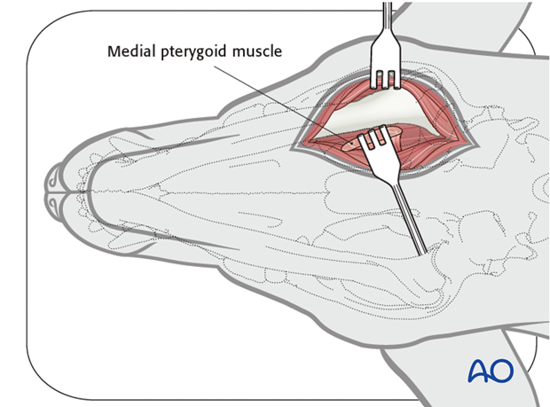 Ventral approach to caudal mandible anatomical exposure medial pterygoid muscle alt