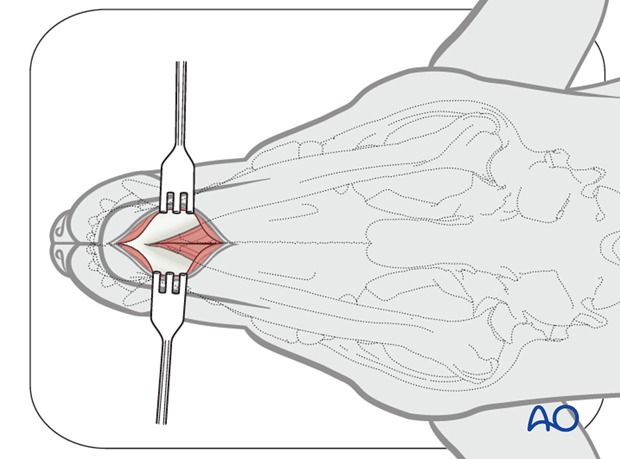 Ventral approach to rostral mandible skin incision|alt