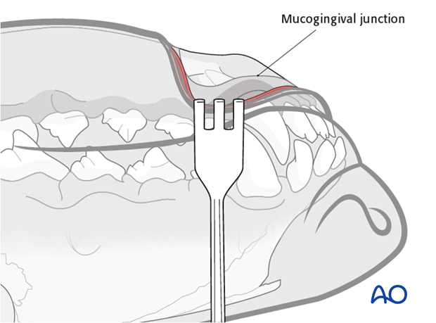 Ventral approach to rostral mandible mucogingival junction protection|alt